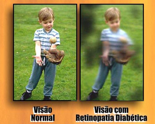 retinopatia diabetica material didatico