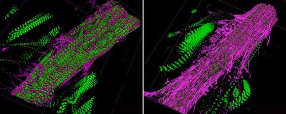 Imagem da pesquisa. À esquerda, vasos cardíacos de moscas normais, com pouca fibrose (em rosa). Já na direita, a fibrose domina o vaso de uma mosca alimentada com dieta rica em sacarose. Crédito: Sanford-Burnham Medical Research Institute.