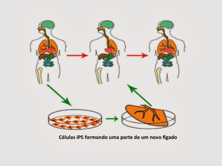 dr carlos couri celulas ips diabetes