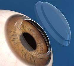 Olho córnea diabetes