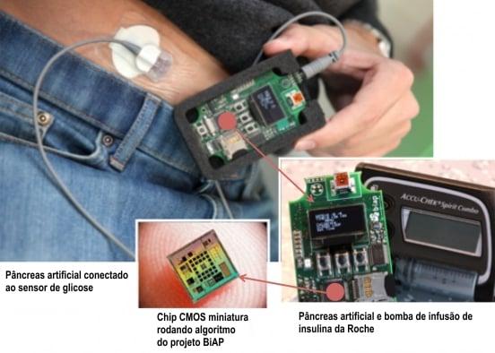 pancreas artificial diabetes