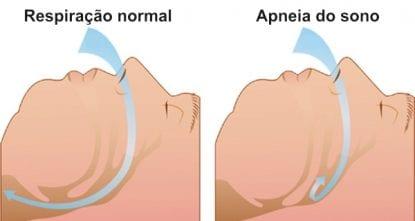 esquema apneia do sono diabetes