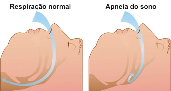 esquema apneia do sono diabetes