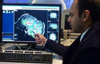 dinesh selvarajah diabetes cerebro