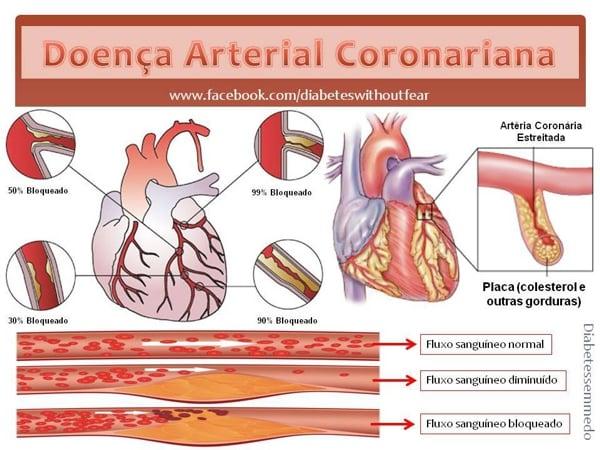 doenca arterial coronariana diabetes