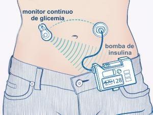 pancreas artificial esquema