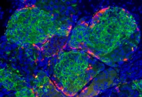 celulas beta tronco diabetes