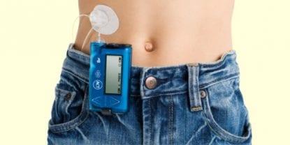 bombas de insulina diabetes